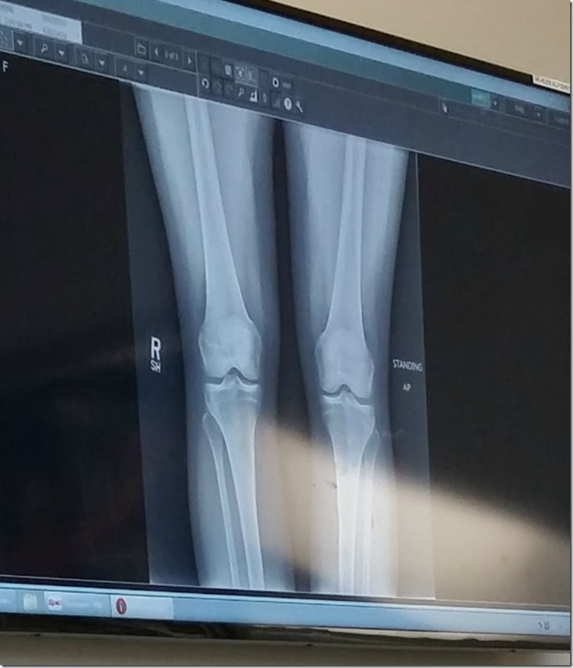 Dat X-ray Doe